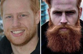 Похудел, стал известным и успешным: история о том как борода круто изменила жизнь одного парня